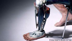 prostetika-bbc
